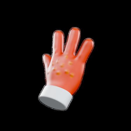 Hand Allergy 3D Illustration